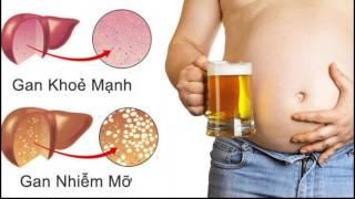 Mỡ nội tạng là gì - Làm sao để loại bỏ?