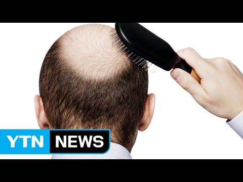탈모 치료 길 열리나...모발 가늘어지는 원인 규명 / YTN