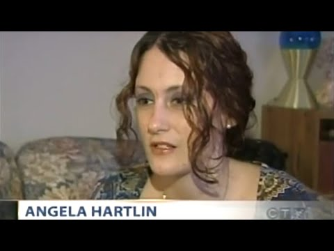 The First Dermatillomania Interview on TV