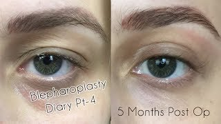 My Eyelid Surgery 5 Month Check In | Cosmetic Blepharoplasty Diary Part 4