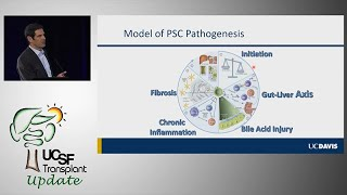 New Frontiers in the Management of PSC