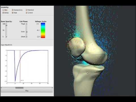 BioniCare Knee signal