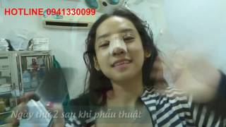 Thúy Vi lộ clip phẫu thuật thẩm mỹ - Tư vấn 0941330099