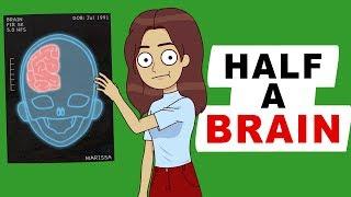My Life With Half A Brain