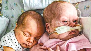 """This Couple Adored Their Twin Girls, But Then The Doctor Said """"I'm Sorry"""""""