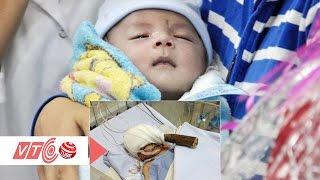 Kỳ tích: Bé trai bị đâm xuyên não được xuất viện | VTC