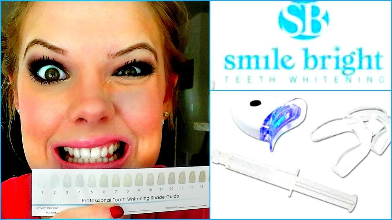 Teeth Whitening Vlog Smile Bright Whitening System Youtube
