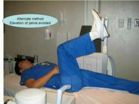 X table lateral hip - YouTubeXray Femur Positioning