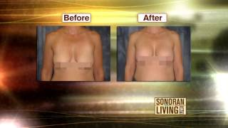 To Lift or Not to Lift? Breast Lifts Explained.