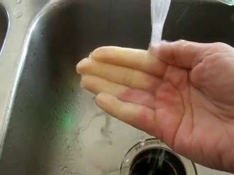 Raynaud's Phenomenon in Real Time