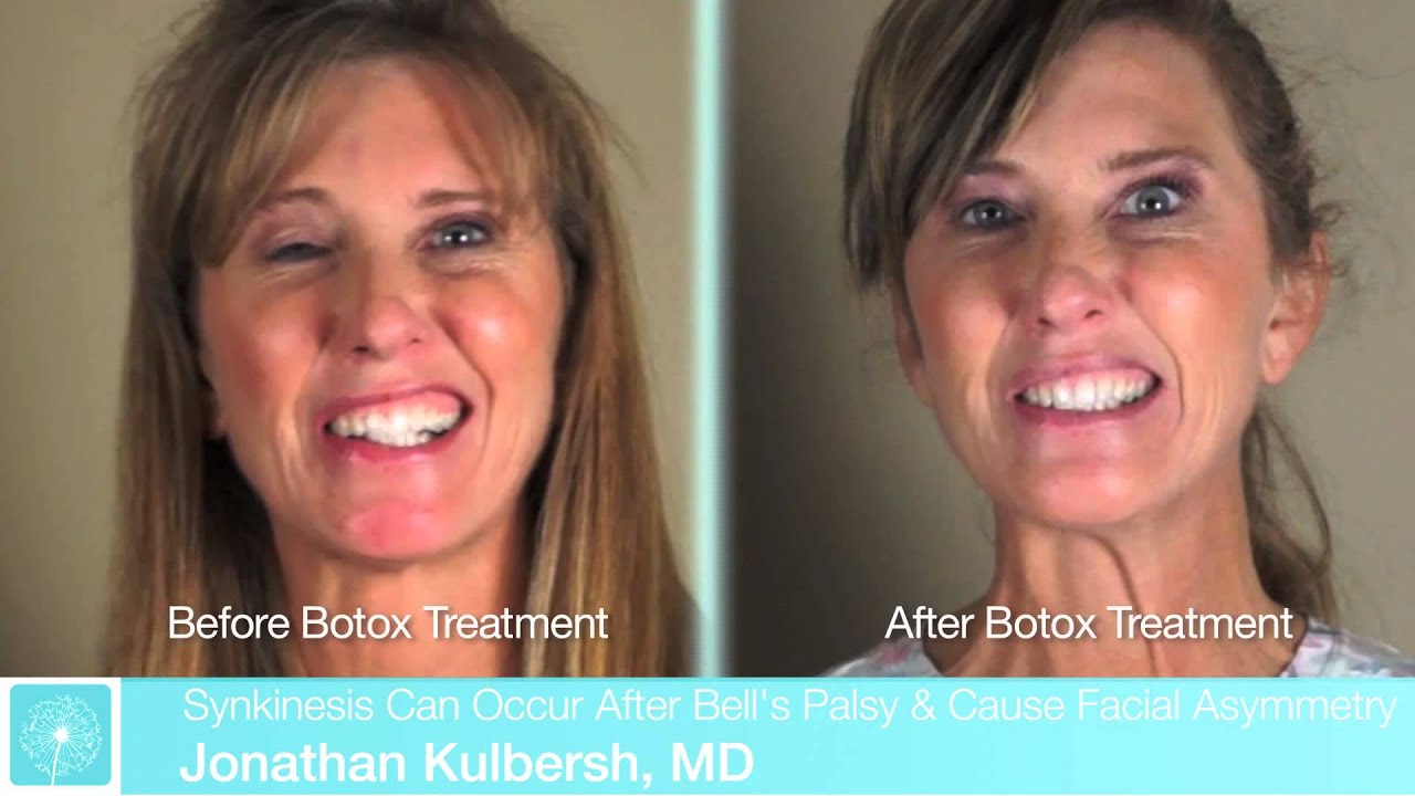 Botox For Bell S Palsy Bell S Palsy Treatment Dr