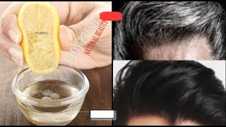 NATURALLY / THIS SIMPLE HOME REMEDY