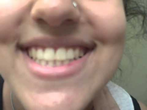 Patient testimonial with Clear braces at Saba Orthodontics, in Sterling, VA