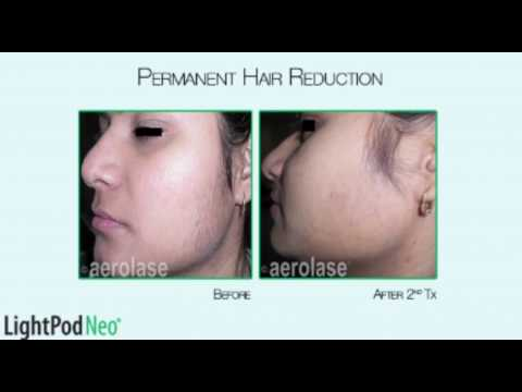 Pain Free Laser Hair Removal with LightPod Aerolase laser in Houston, TX