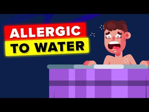 Како изгледа животот на жена која е алергична на вода?