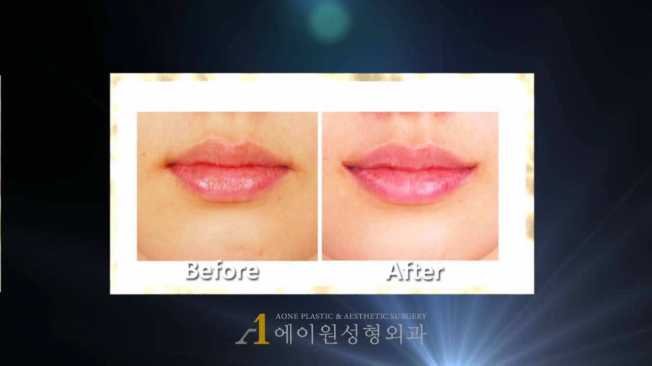 Korea Mouth Corner Lift Before Amp After Plastic Surgery