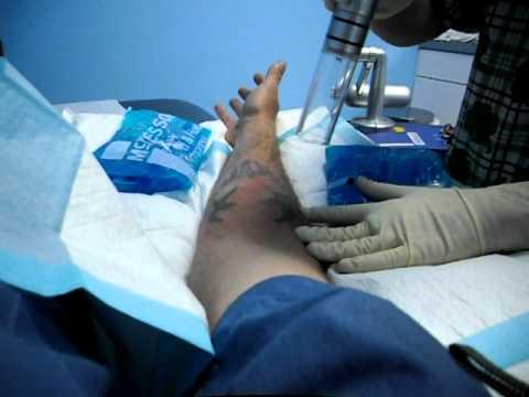 tattoo mushroomhead removal.AVI