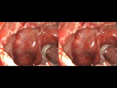 visionsense 3D Endoscopic TransNasal PituitaryAdenoma_SBS.AVI