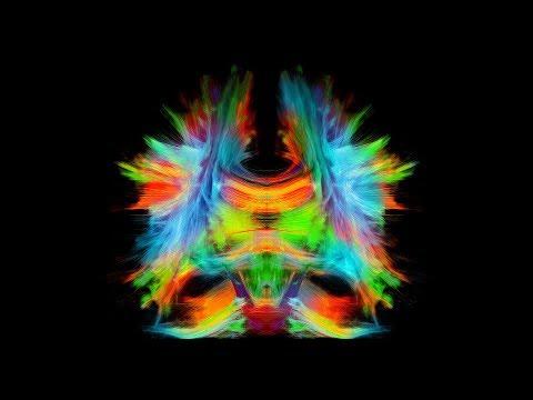 Nouvelle Chaire de recherche en neuroinformatique à l'Université de Sherbrooke | Propulser la connaissance du cerveau. Cette nouvelle chaire sera dirigée par le professeur-chercheur Maxime Descoteaux, du Département d'informatique de la Faculté des sciences de l'UdeS et du Centre de recherche du CHUS.