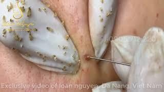 #10 #loannguyen -remove acne blackheads- Mụn đầu đen quá trời