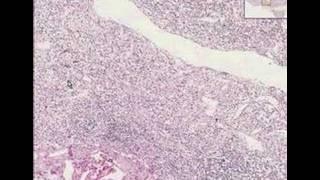 Histopathology Lymph node --Lymphocyte depleted lymph node,