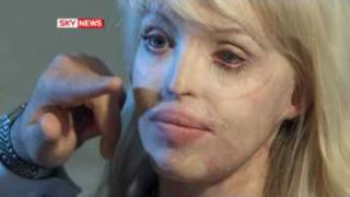 Katie Acid Attack Model Thanks Surgeon