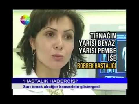 Show TV ANA HABER - Sarı Tırnak Belirtileri