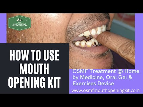 How to Use Award Winning OSMF Mouth Opening Kit Medicine, Exercises Device treatment @ Home in Hindi