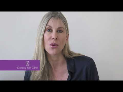 Ultherapy ultrasound before & after with Sharron Davies