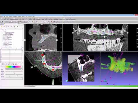 guidemia dual scan 06 object manager mp4