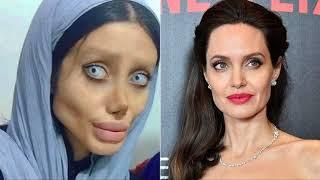 A Iraniana Sahar Tabar se submeteu a 50 cirurgias plásticas para ficar parecida com Angelina Jolie