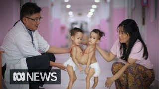 Conjoined twins arrive in Melbourne for 'extraordinarily complex' surgery | ABC News