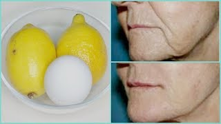 REMOVE WRINKLES, GET INSTANT FACE LIFT NATURALLY, MOUTH WRINKLES, HOMEMADE BOTOX  Khichi Beauty