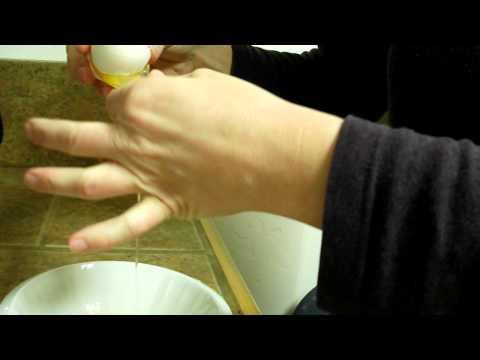 Hostile Cervical Mucus Fertile Cervical Mucus Test