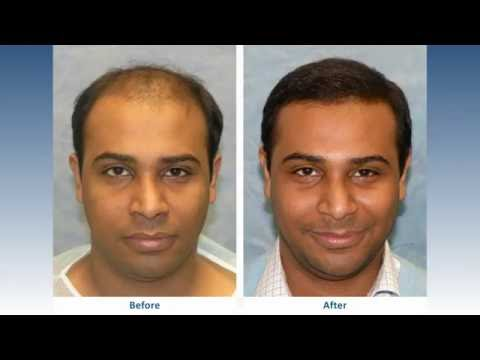 Hair Transplant Results: Bernstein Medical Patient UAR