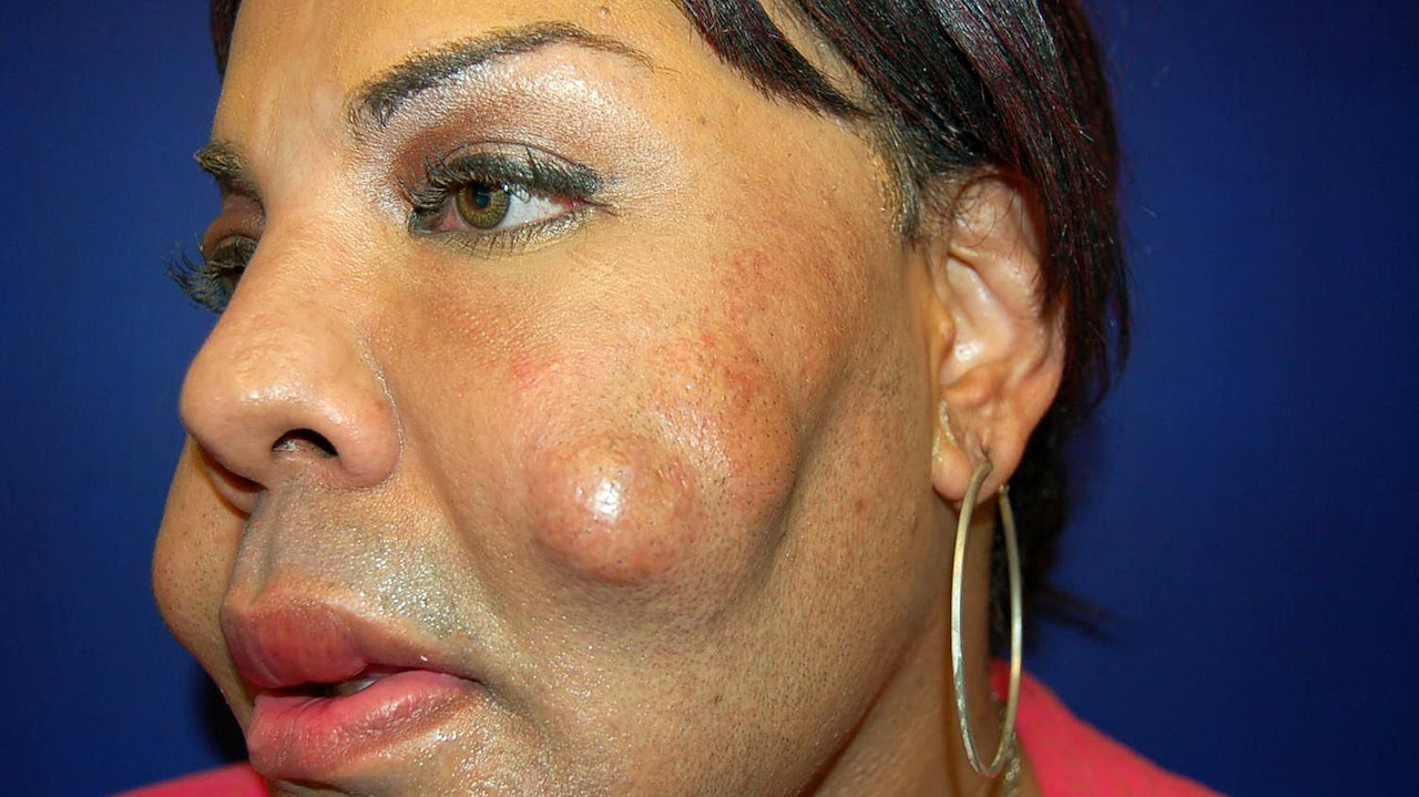 Cosmetic Surgery Disaster Woman Dubbed Cement Face