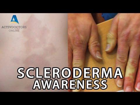 Scleroderma Awareness - June 2016 Webinar