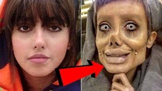 Women Gets 50 Surgeries To Look Like Angelina Jolie? - Sahar Tabar