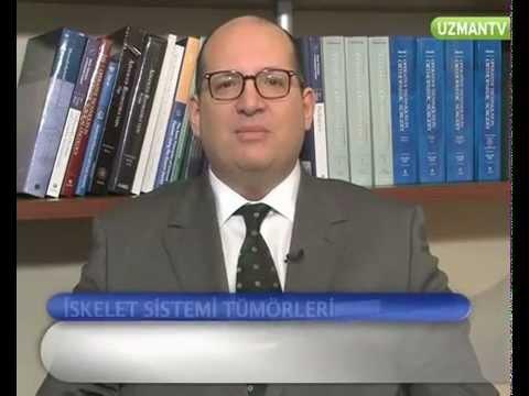 İskelet sistemi tümörleri nelerdir?