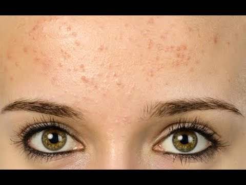 Top 10 Causes of Forehead Acne - Why You Have It?
