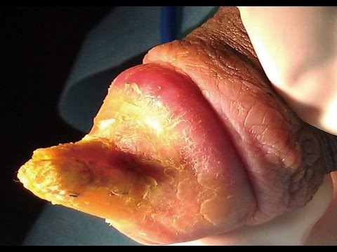 Removal of genital warts