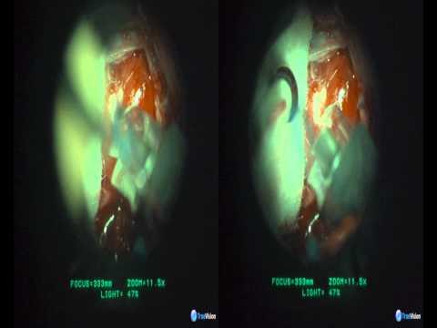 Oldfield - Pituitary Adenoma