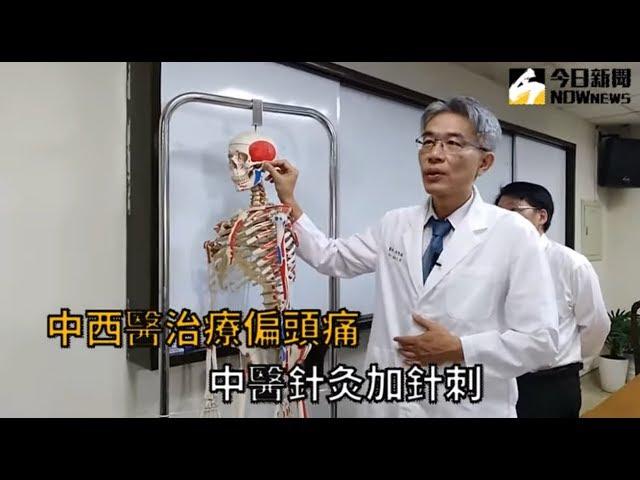 影/中醫針灸結合西醫 治療偏頭痛見效