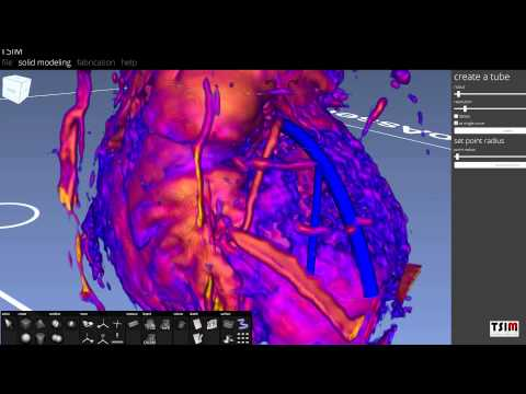 Printing the Heart – TSIM & BioAssemblyBot Workflow