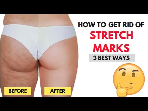 How to get rid of stretch marks: 3 easy ways of 2017