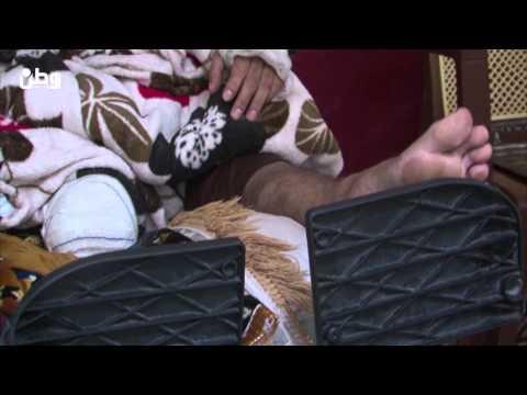 اكرم العاوور بترت ساقه اثناء إنقاذه الجرحى تحت القصف، فهل من يسعفه؟