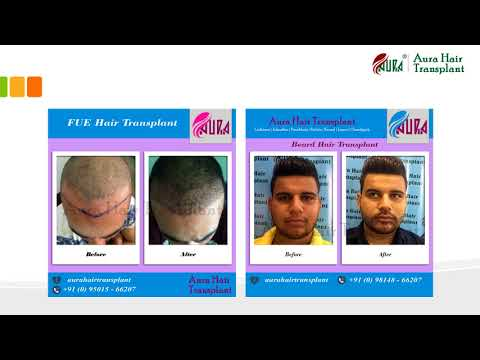 Aura Hair Transplant - Before and After Results