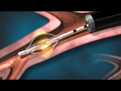 The Alair® Bronchial Thermoplasty (BT) System - Pulmonary Consultants