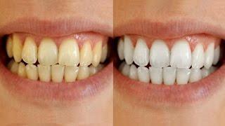 Teeth Whitening By Simple Beauty Secrets