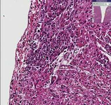Histopathology Heart --Coxsackie B2 myocarditis